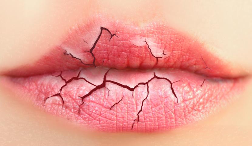 Lábios ressecados: Como cuidar dos lábios nos dias mais frios