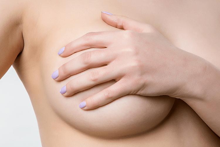 Silicone: Mamoplastia de aumento e os mitos